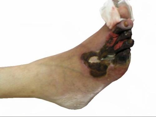 下肢动脉硬化闭塞症_下肢动脉硬化闭塞症
