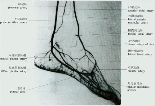 下肢动脉硬化闭塞症_下肢动脉硬化闭塞症的介入治疗_特色诊疗__河