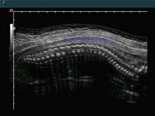 胎儿脊髓圆锥超声成像