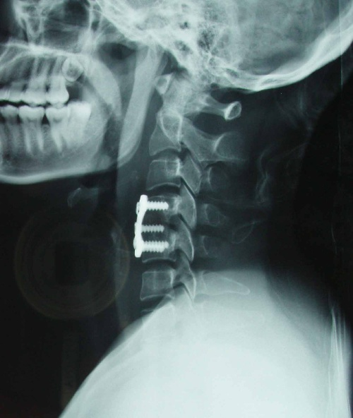 颈椎骨 人体颈椎骨图,人颈椎骨解剖图图片